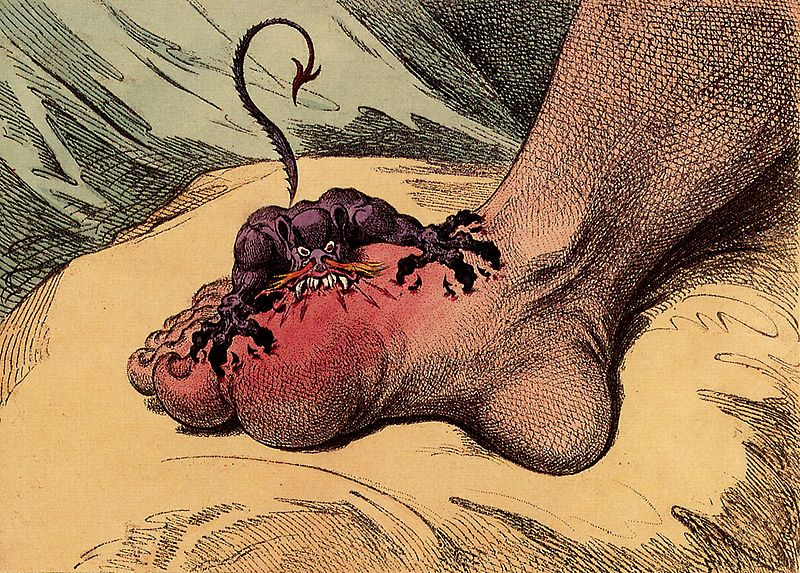 gout portayal from wikipedia