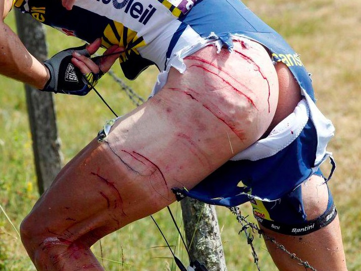 bike rider scratched by barb wire fence