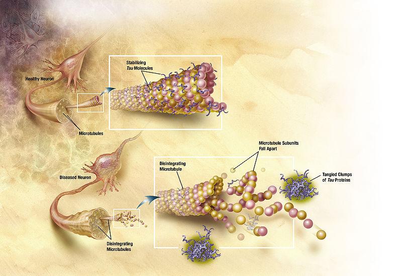 brain dendrites showing tau proteins