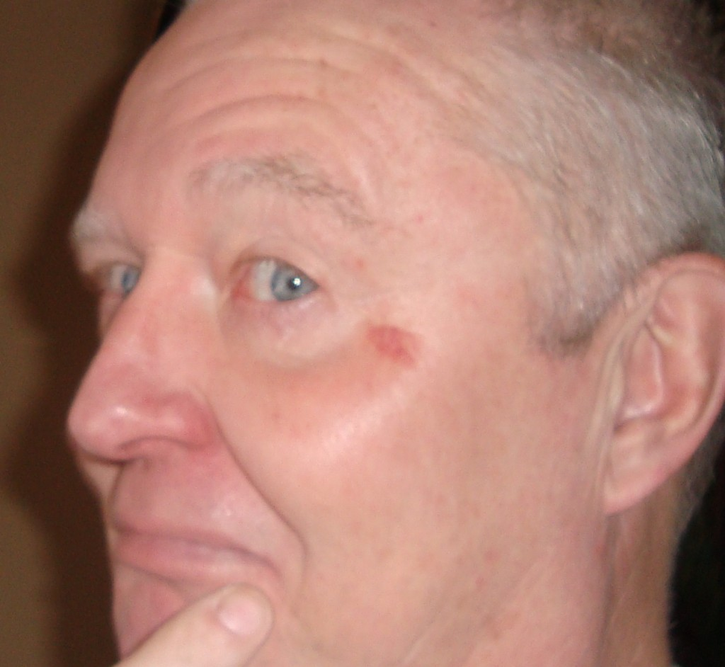 barry williams old age alcoholic face mark